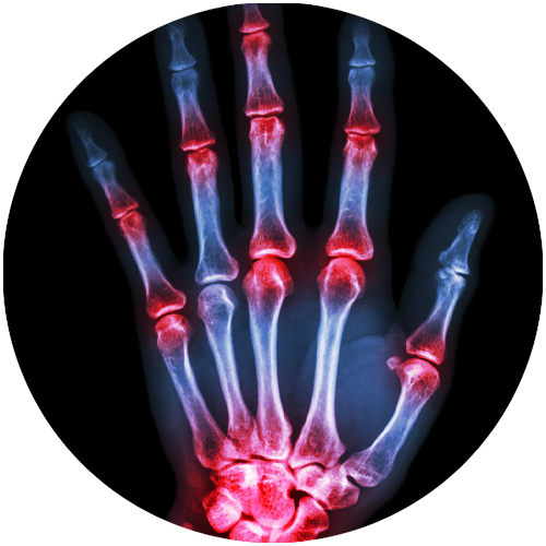 Fingergelenke