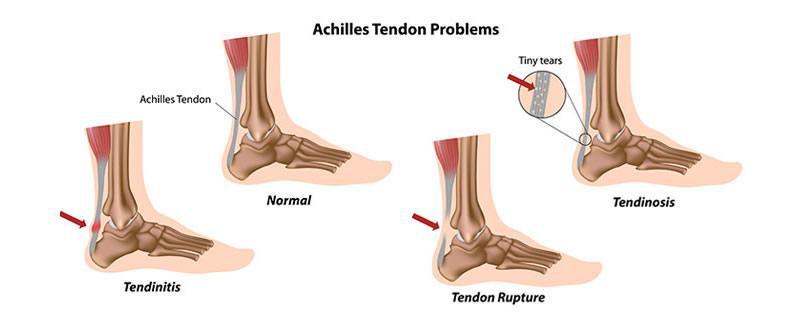 What's your Achilles Heel?