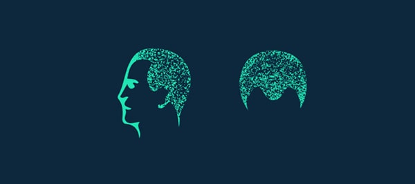 Darstellung des diffusen Haarausfalls