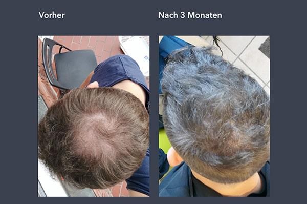 Haarausfall Bild - Vergleich Vorher / Nachher