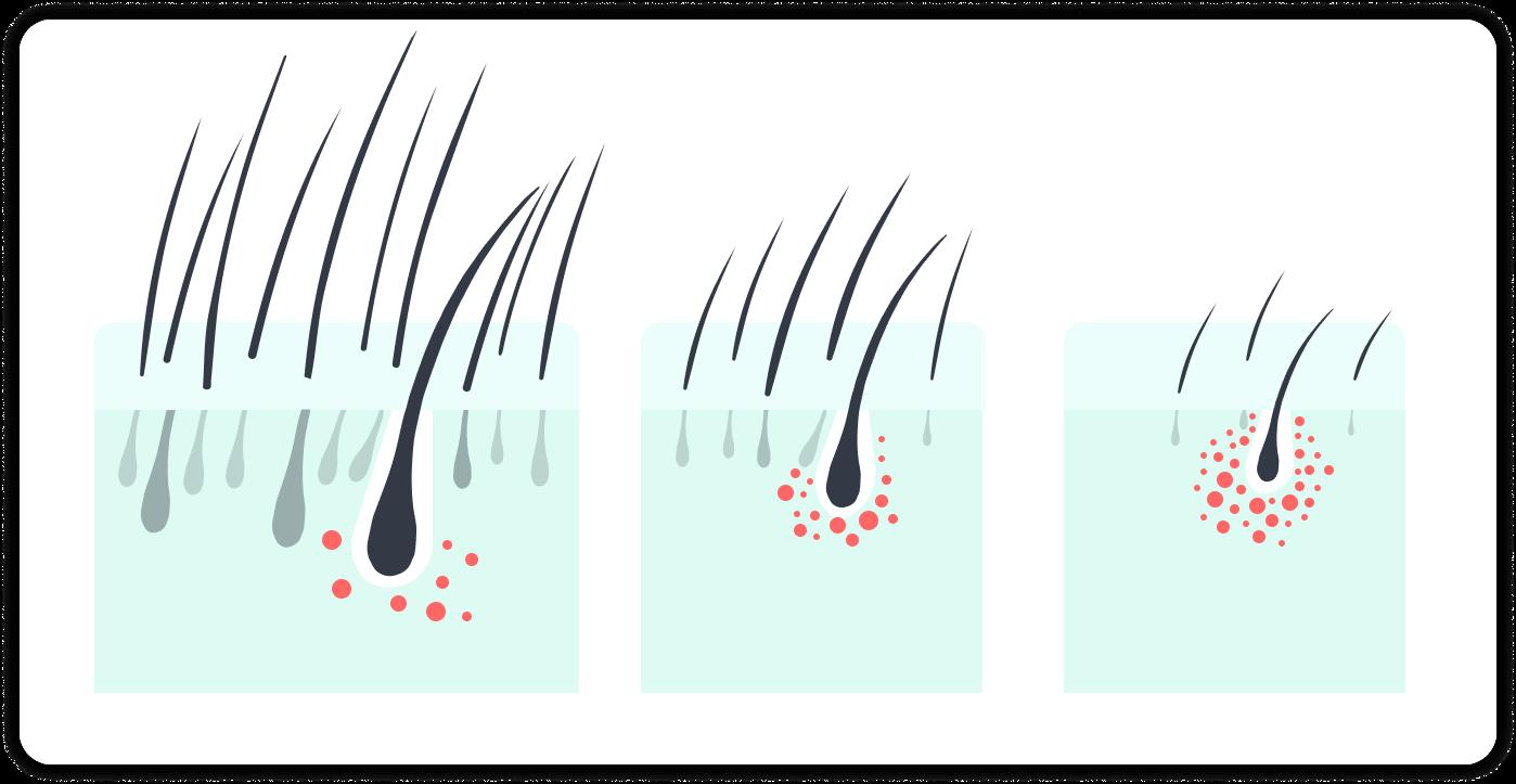 Was passiert wenn DHT ungestört auf Haarfollikel einwirkt?   MySpring