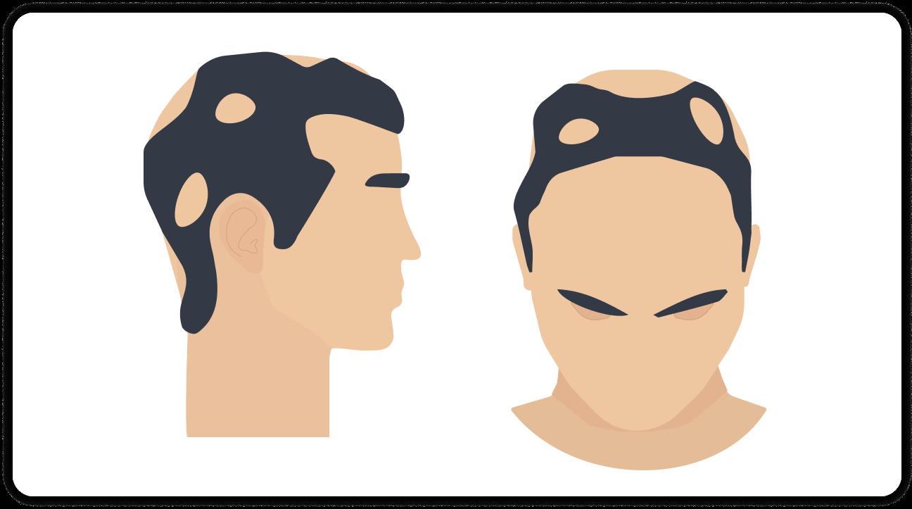 Vernarbender Haarausfall tritt nur an bestimmten Arealen auf dem Kopf auf. | MySpring