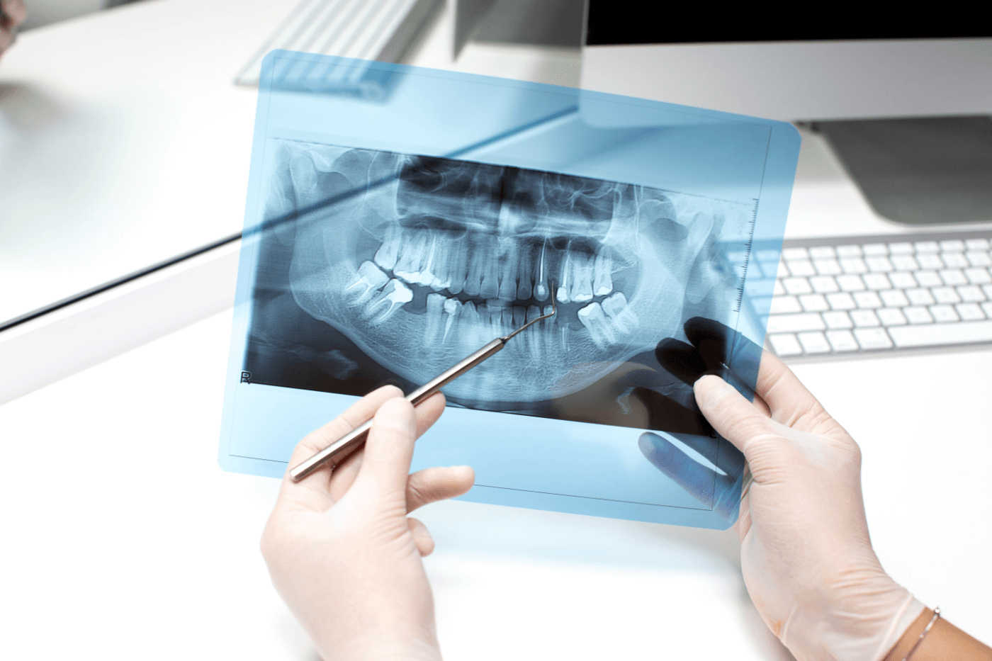 person checking x-ray closely