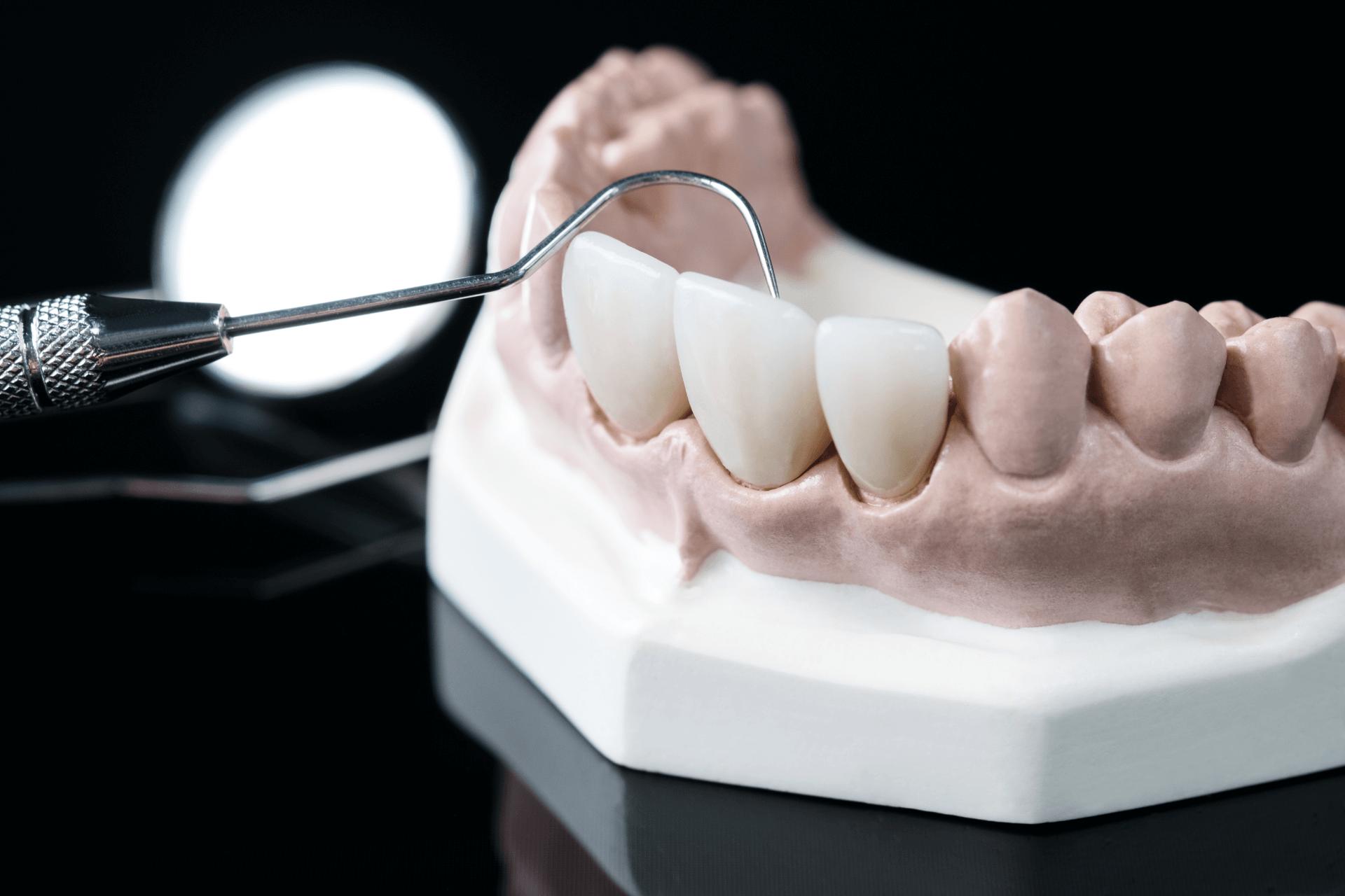 dental bridges kingman az kingman family dentistry