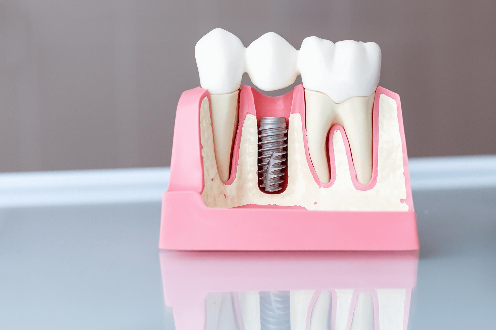 dental implants kingman az kingman family dentistry