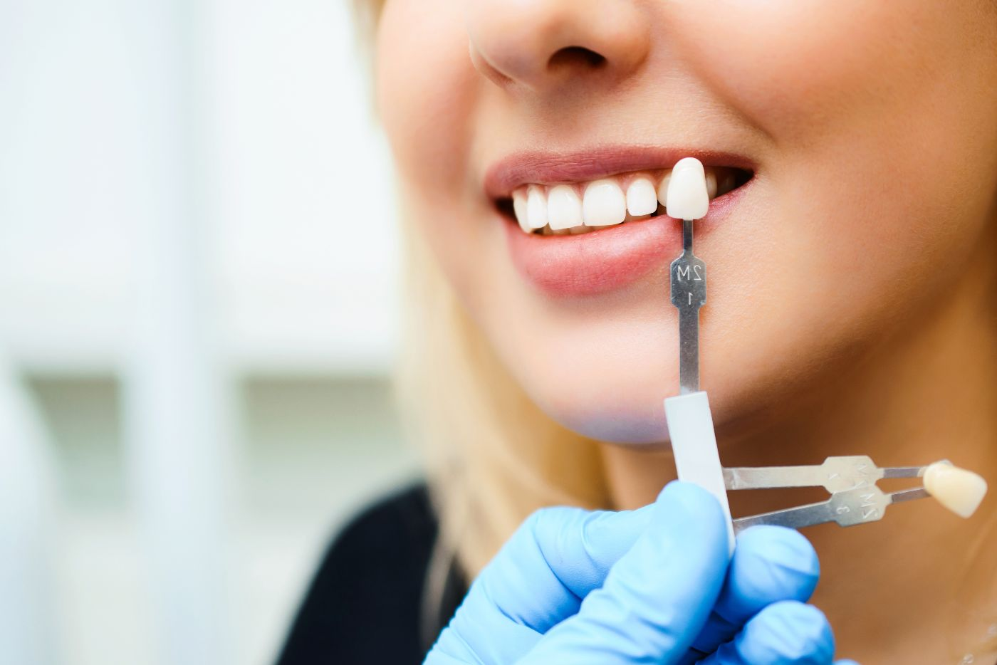 Dental veneers in Spartanburg