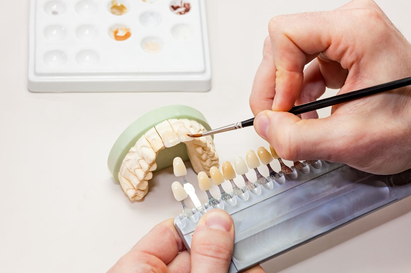 Restorative dental procedure