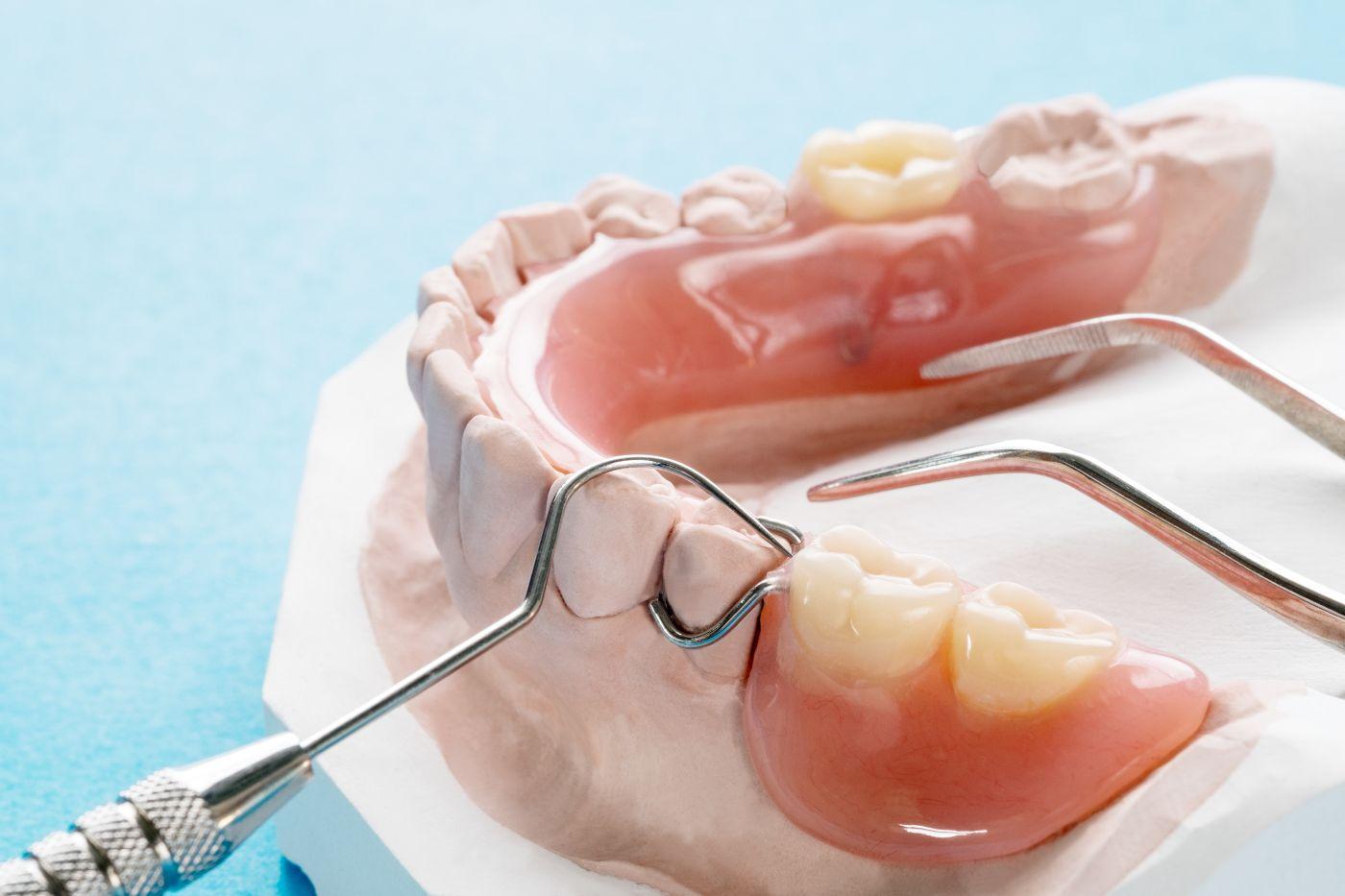 Restorative dental procedure in Spartanburg
