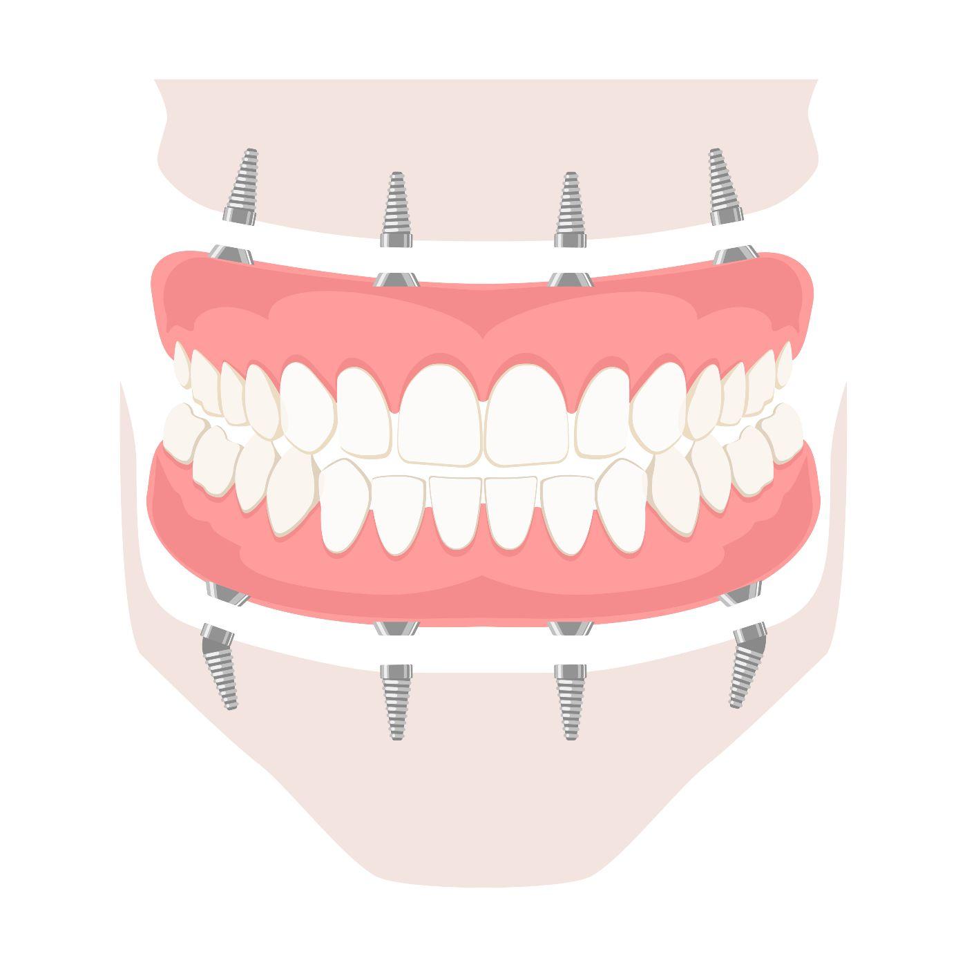 Spartanburg dental implants