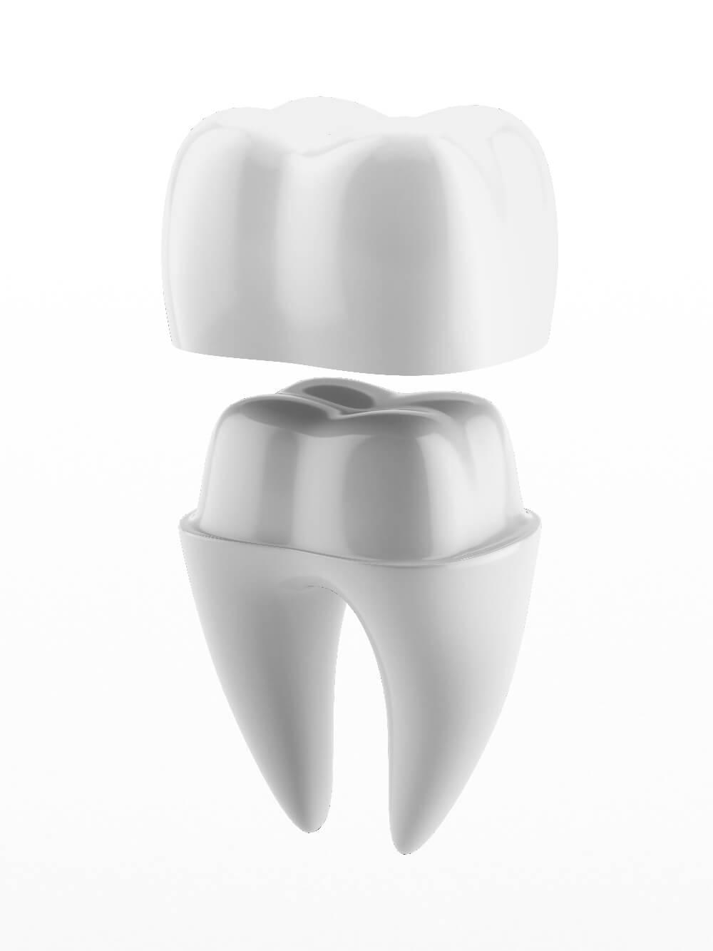 Dental crown example