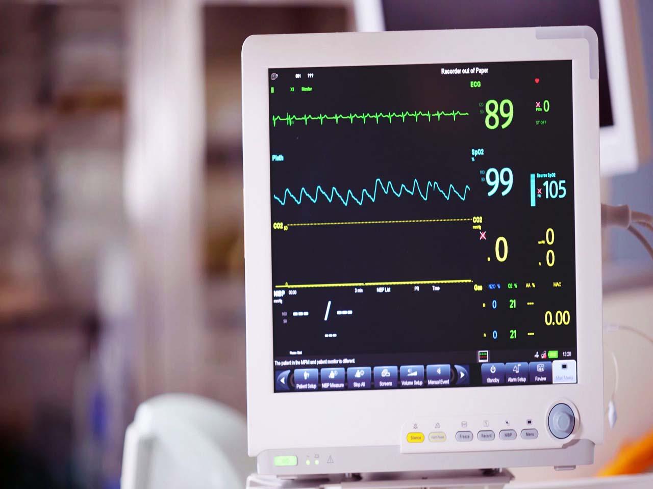 Exame ECG - Como alinhar o eletrocardiograma com a tecnologia?