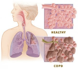 COPD & Asthma diagram