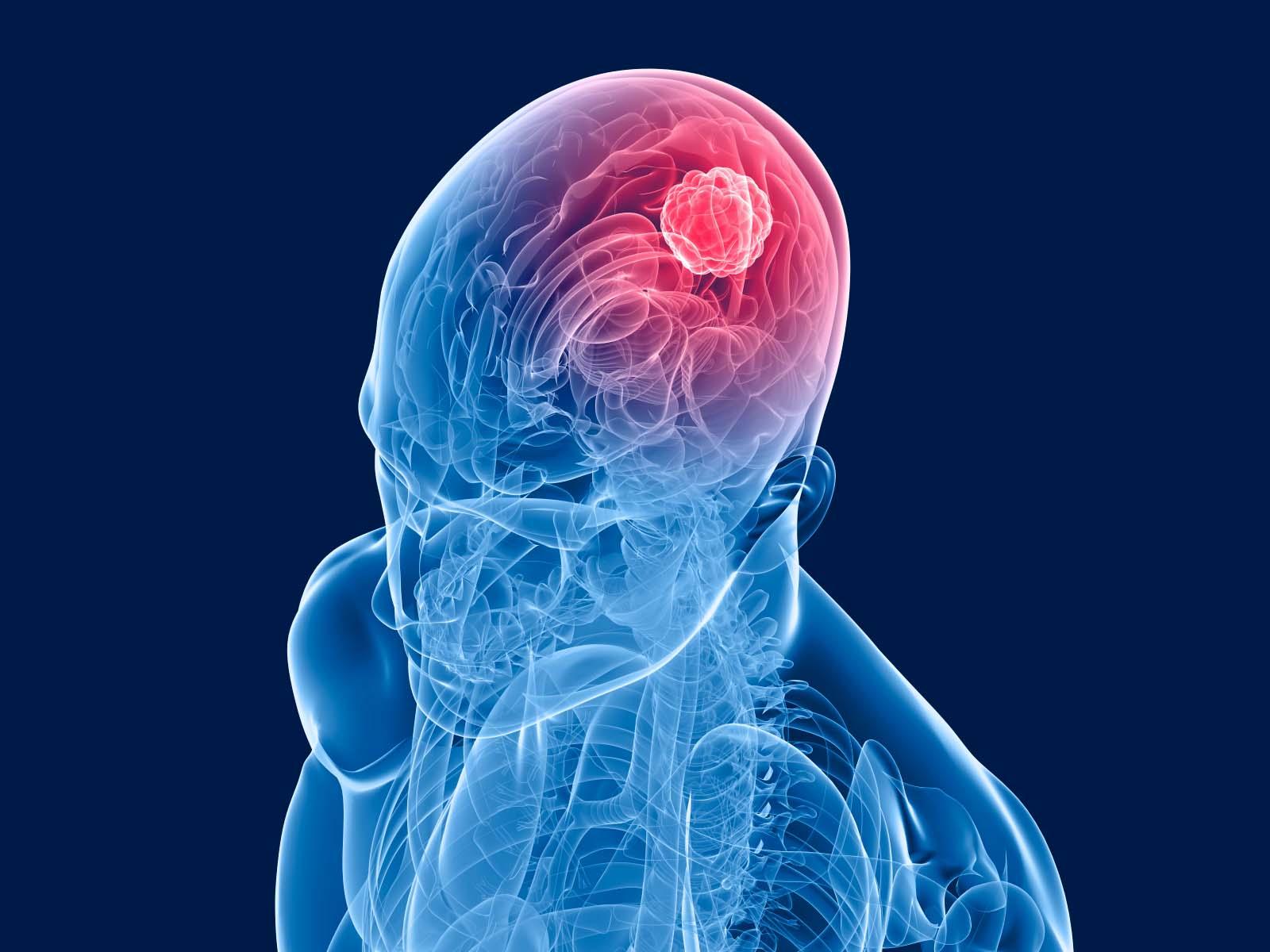 Illustration of brain tumor