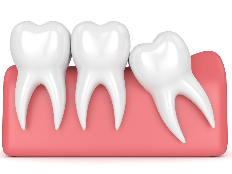 crooked tooth illustration