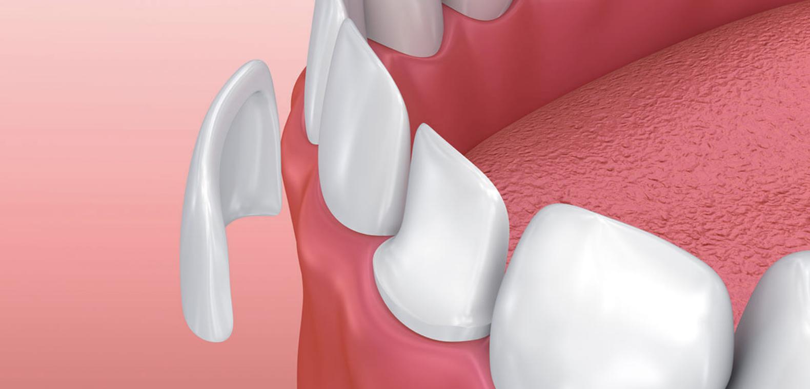 Porcelain Veneers - A Complete Smile Transformation