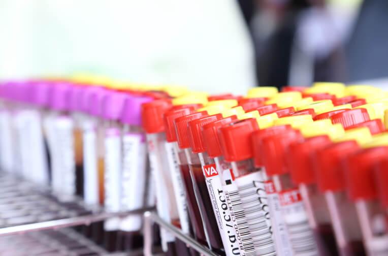 blood tubes for analysis