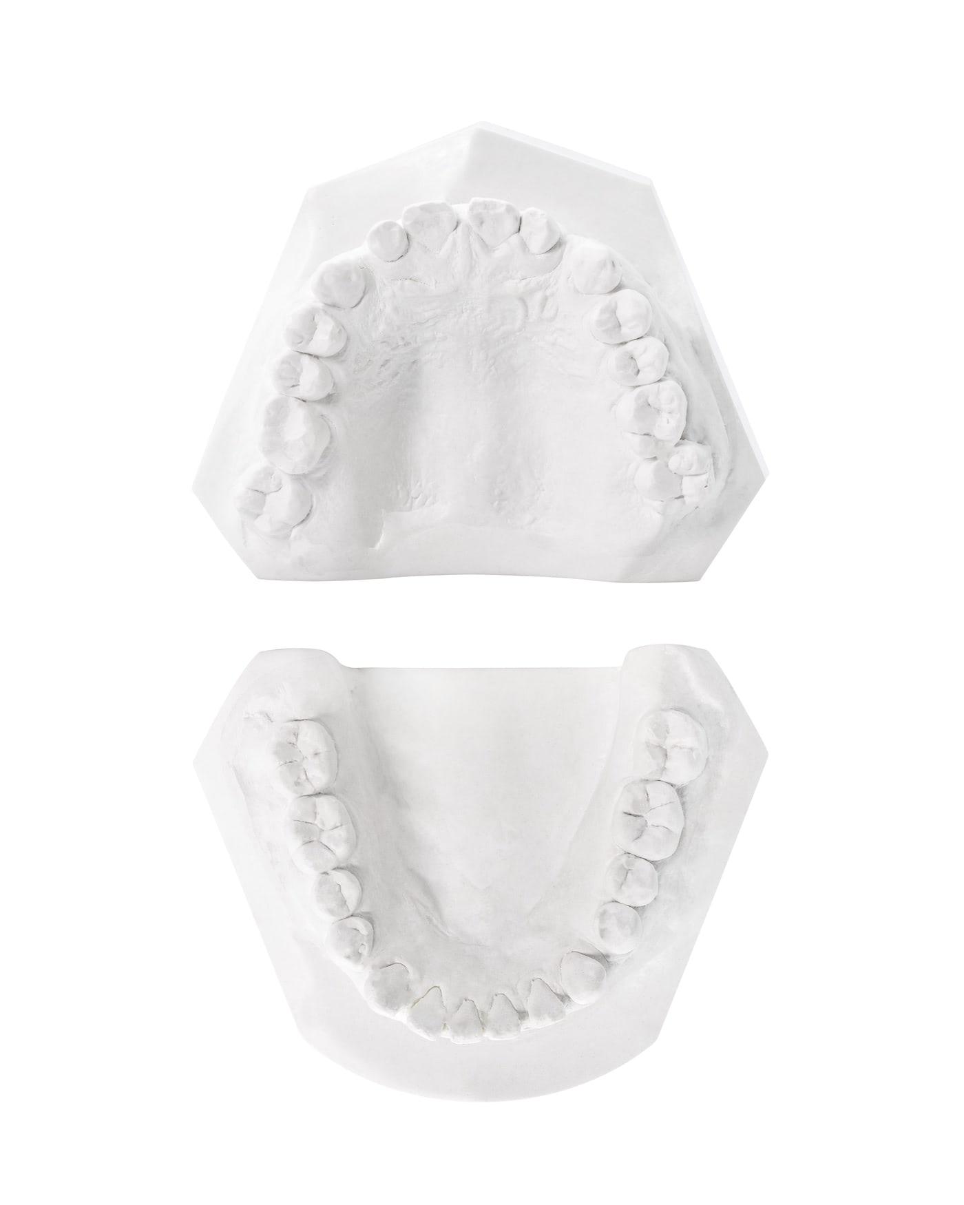 dental mockup