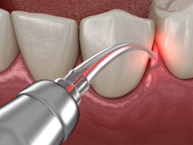 laser gummy smile treatment