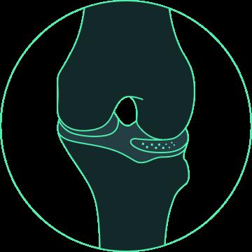 meniscus prosthesis design