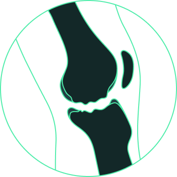 prosthesis design for osteochondral defects