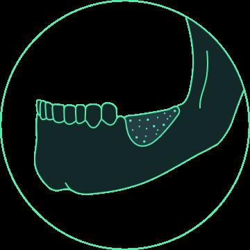 dental and oral rehabilitation design