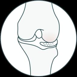 meniscus design