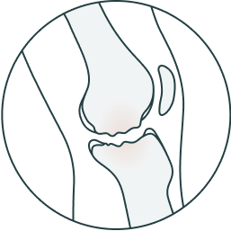 Osteochondral defects design
