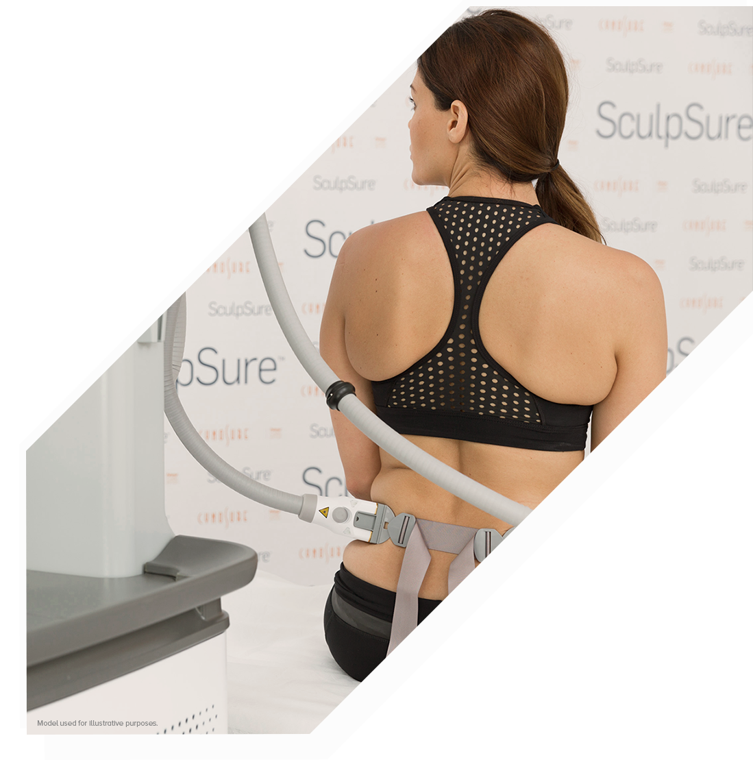 A back view of a woman receiving a SculpSure body contouring treatment