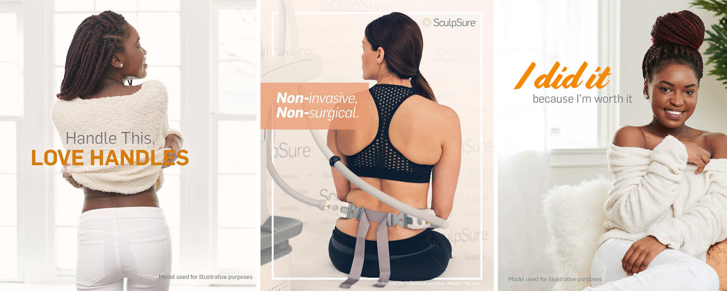 Collection of female models happy and showing off the body-contouring technology of SculpSure
