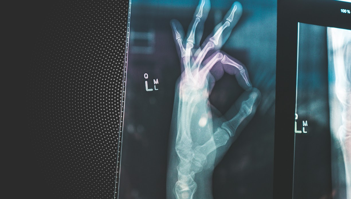 Lateral x-ray of a healthy left hand making an okay sign