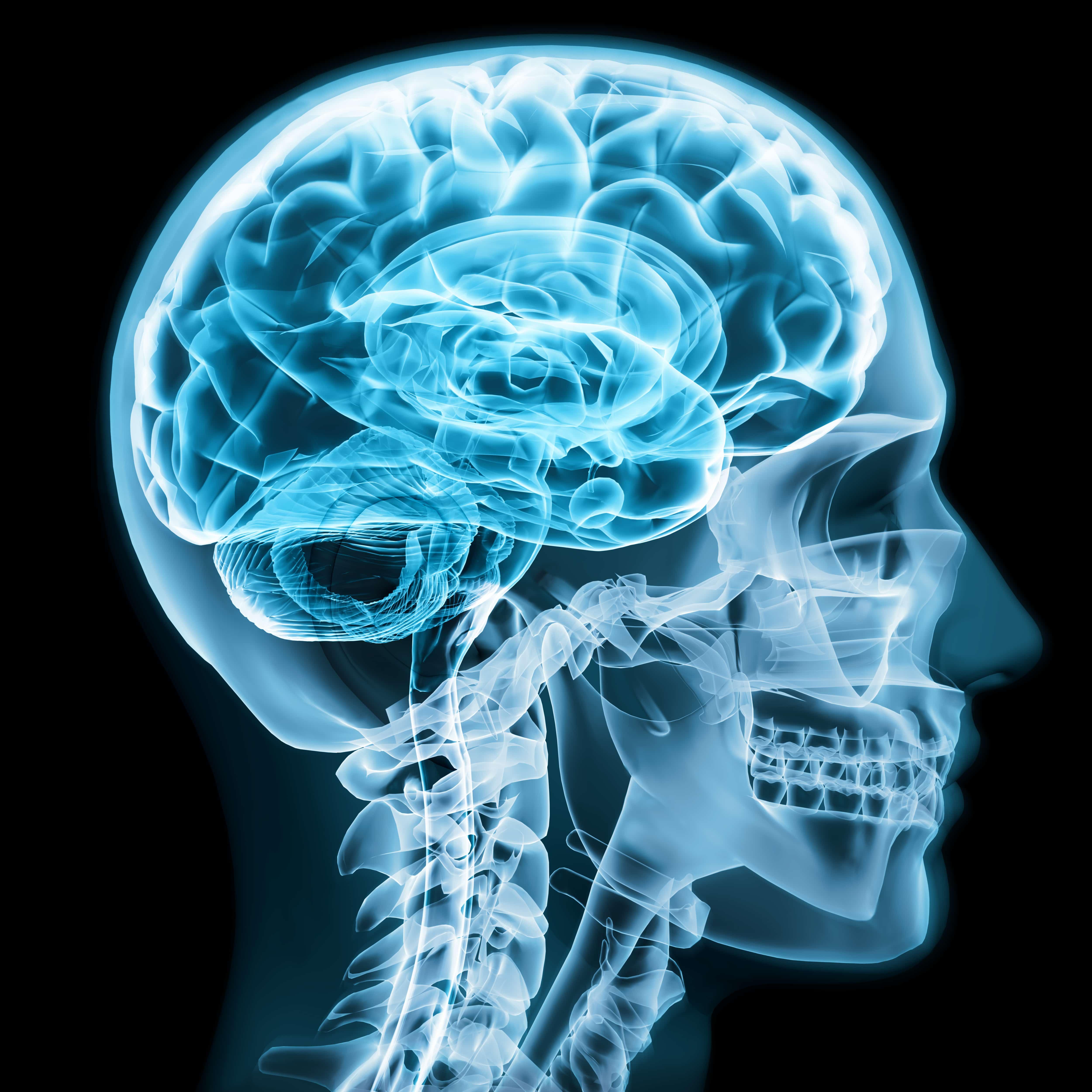 X-ray of brain showing brain activity