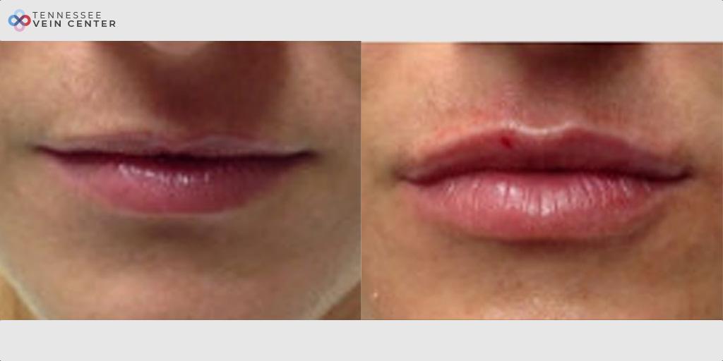 Lip Filler Case 1476