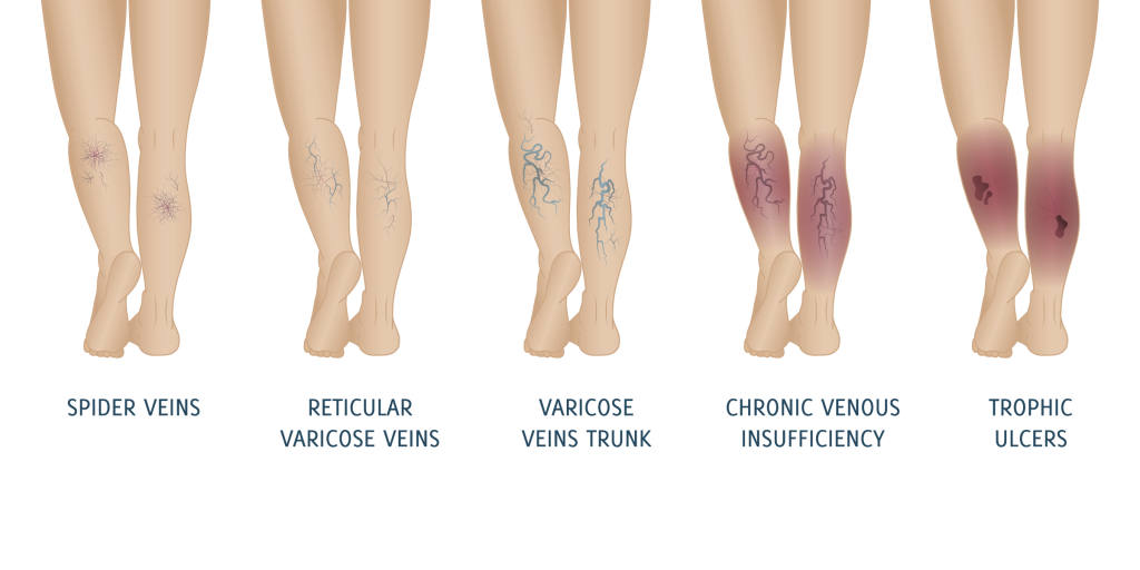 Stages of Development of Varicose