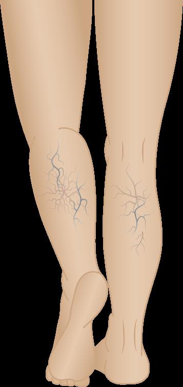 Reticular Veins