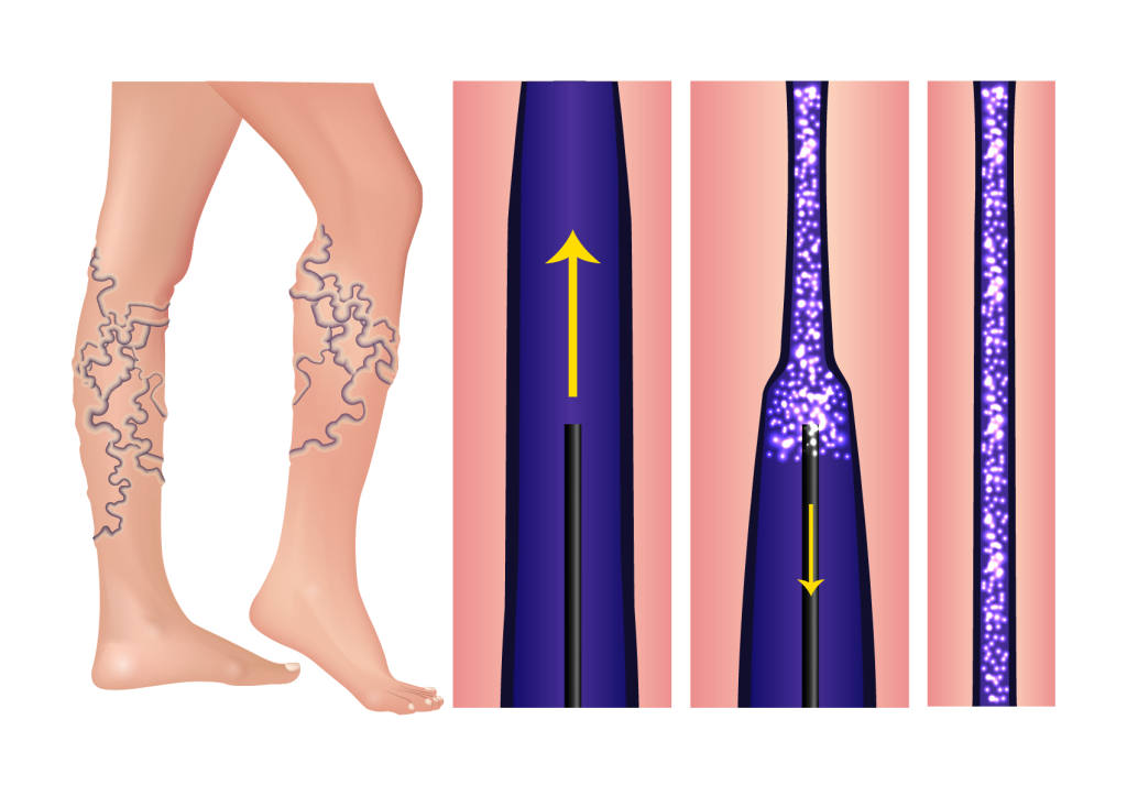 Sclerotherapy of Varicose Veins