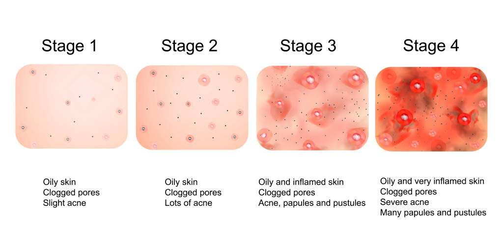 Stages of Acne Development