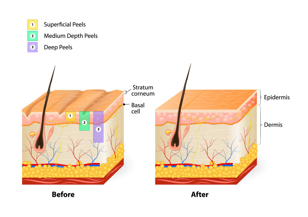Corrective Chemical Skin Peels