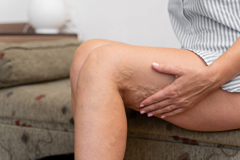 How do I know if I have Varicose Veins?