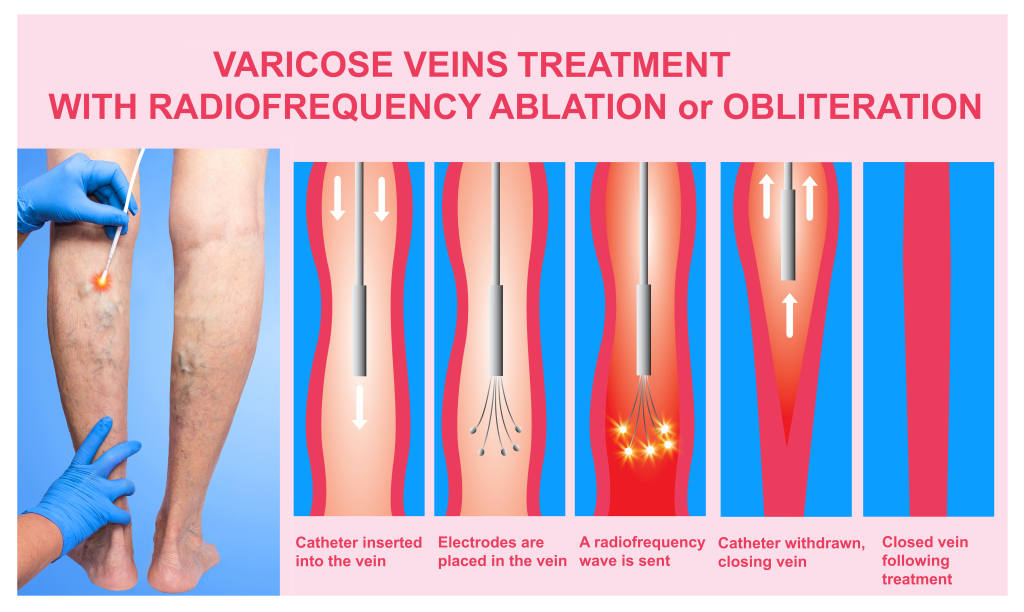 Varicose Veins Treatment with Radiofrequency Ablation or Obliteration