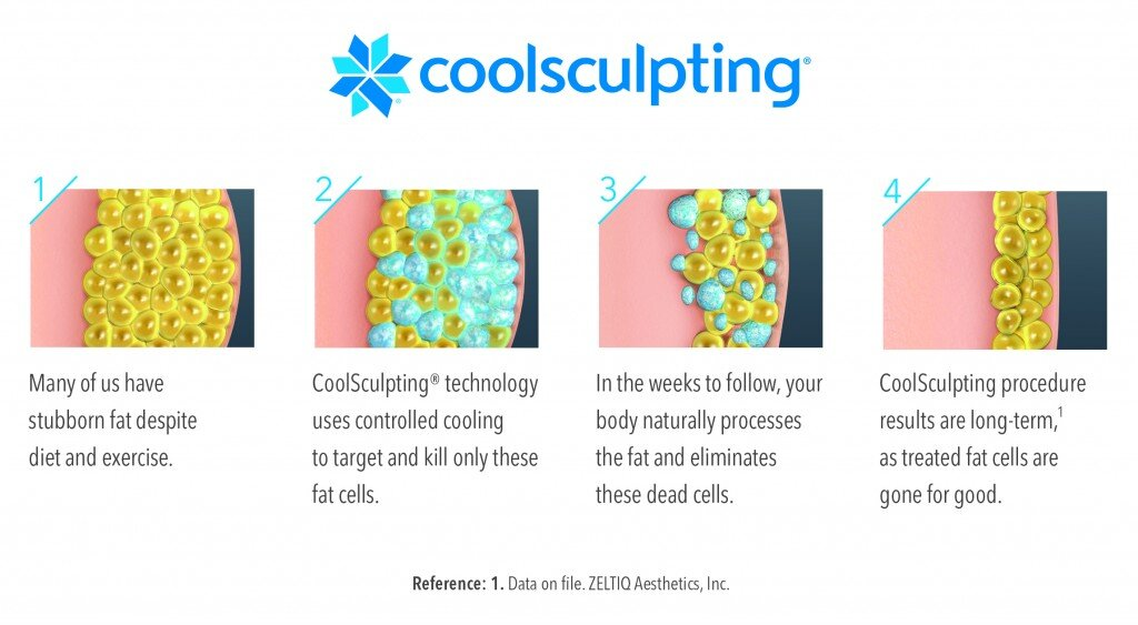 ArtfulSurgery SMOL-Illustration Process CoolSculpting