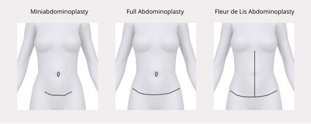 Types of Abdominoplasty