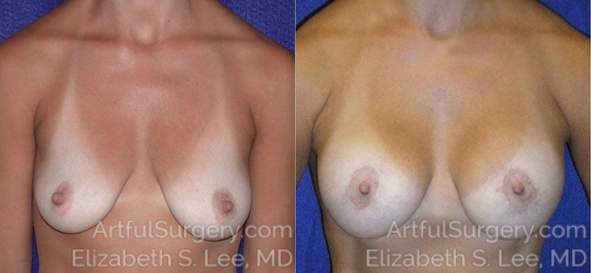 Breast Augmentation Before & After Patient #2445
