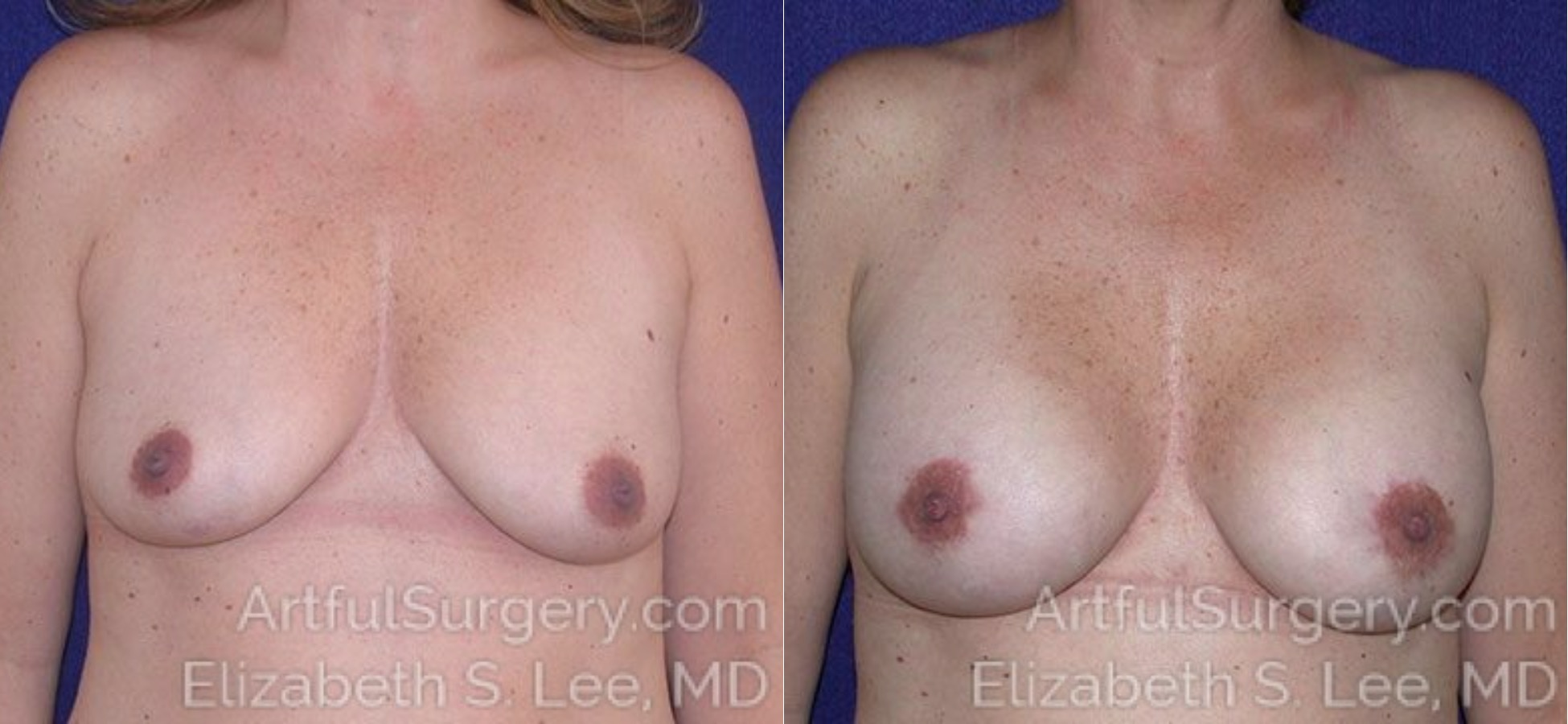 Breast Augmentation Before & After Patient #2446