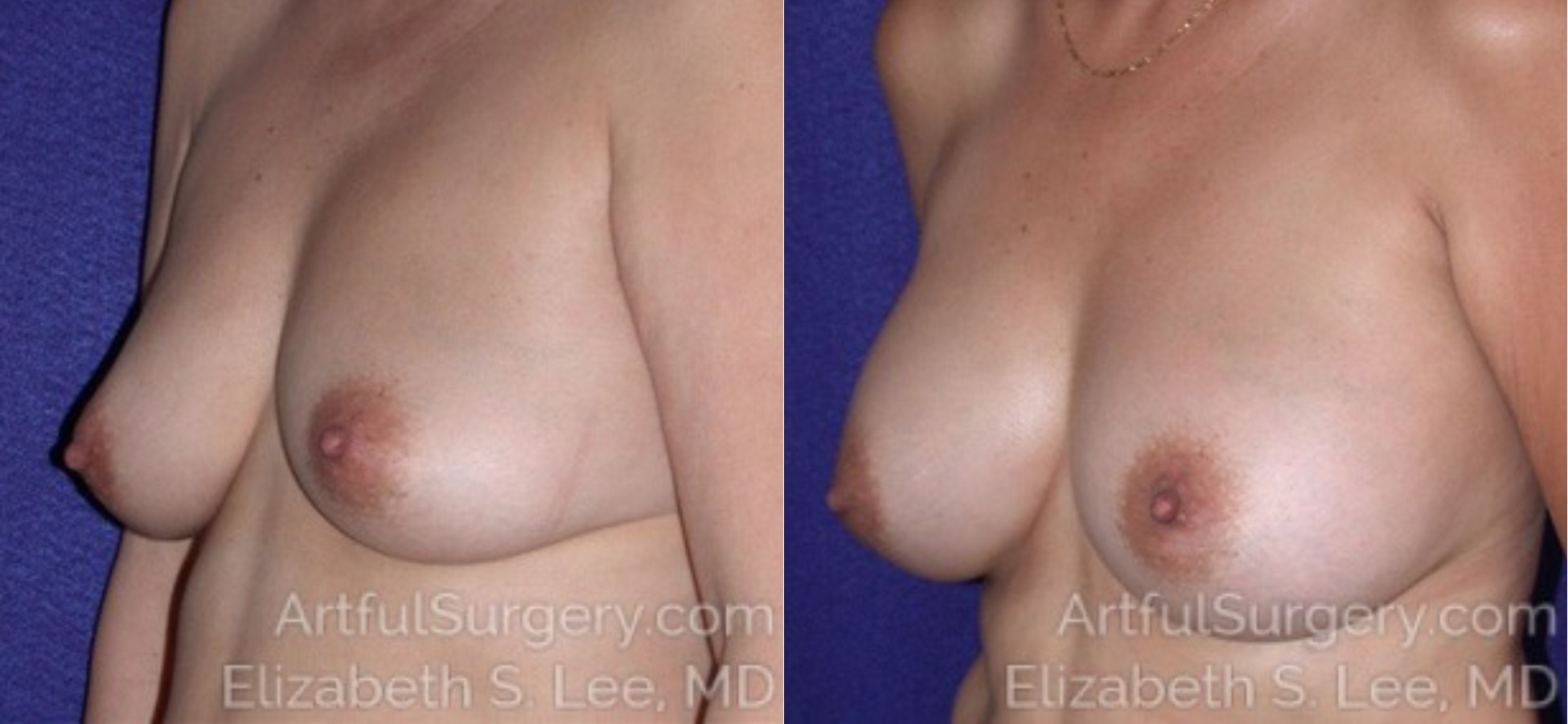 Breast Augmentation Before & After Patient #6480