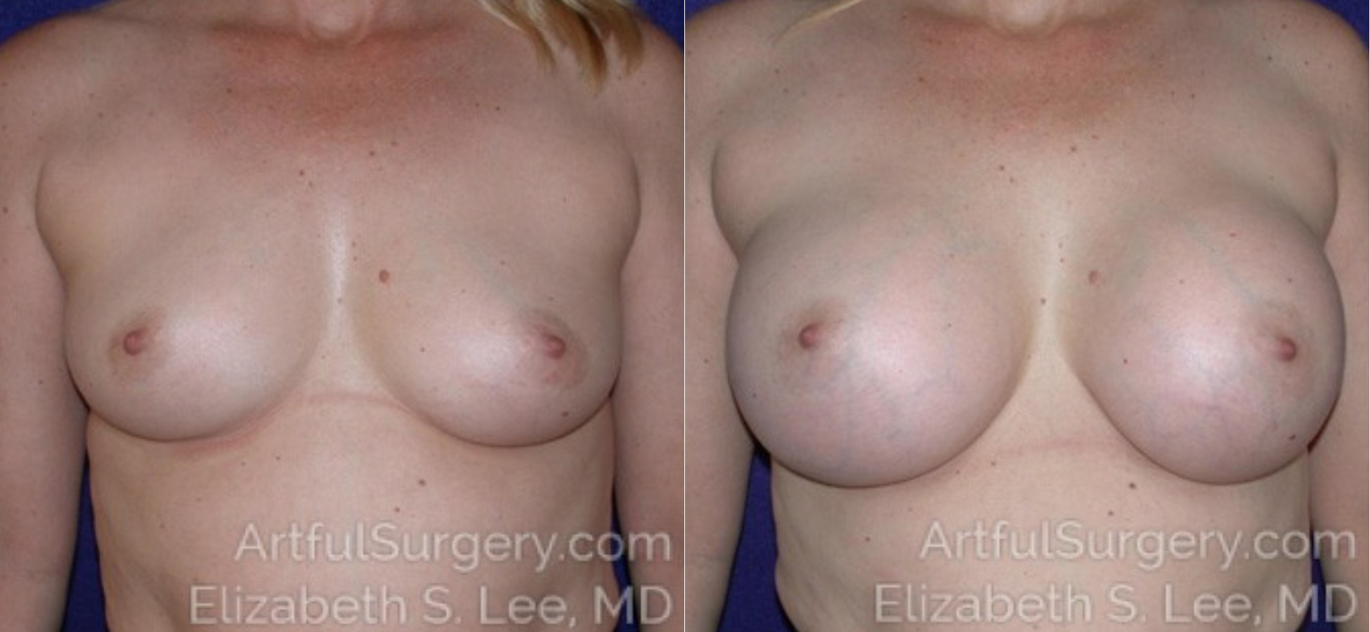 Breast Augmentation Before & After Patient #6530