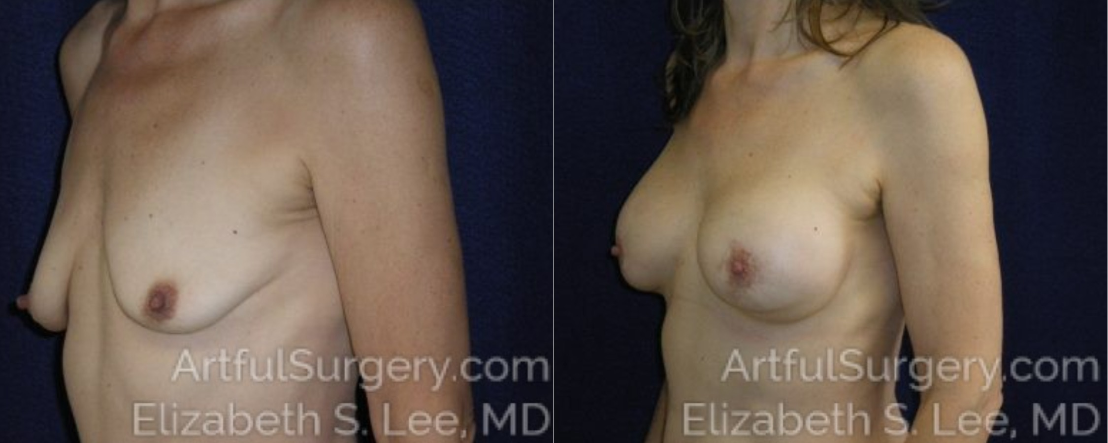 Breast Augmentation Before & After Patient #2450