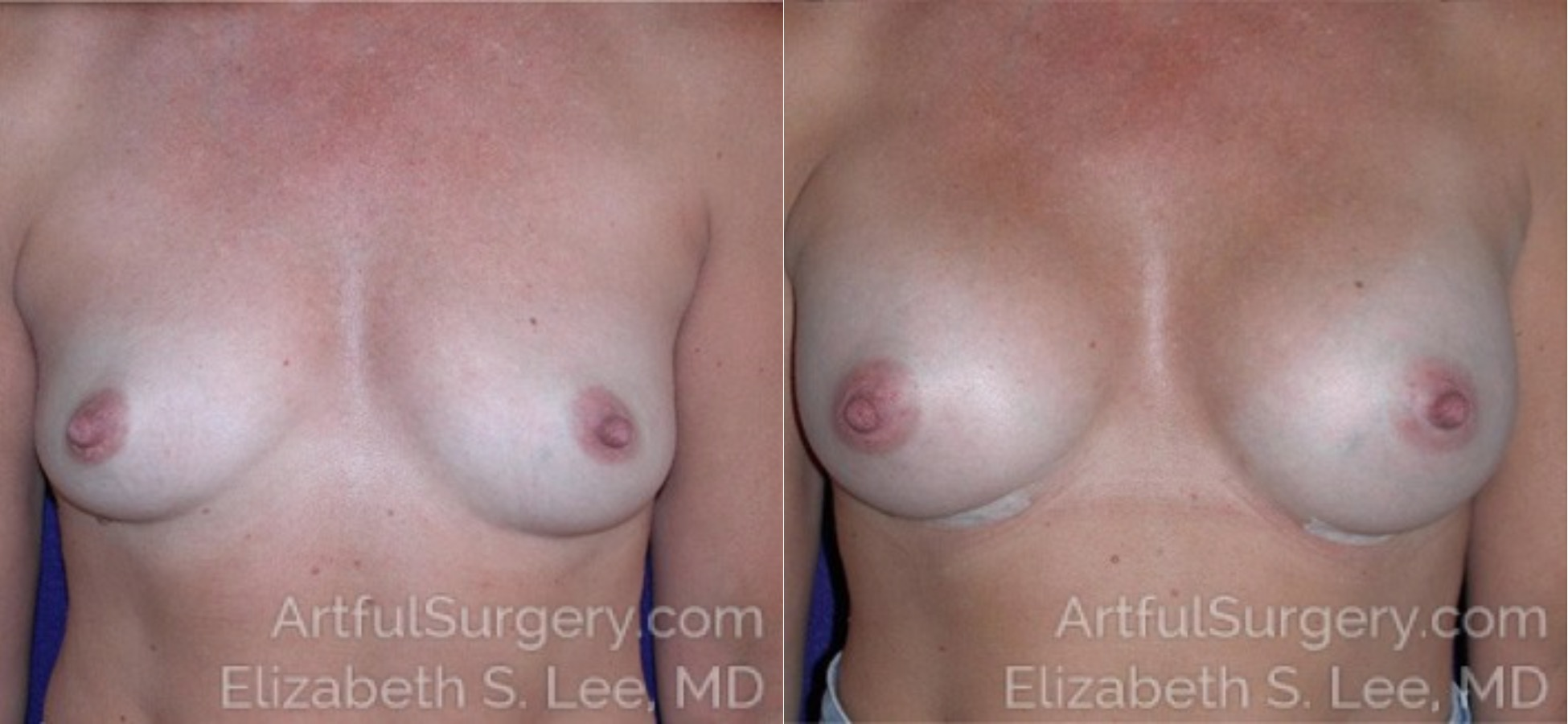 Breast Augmentation Before & After Patient #6680