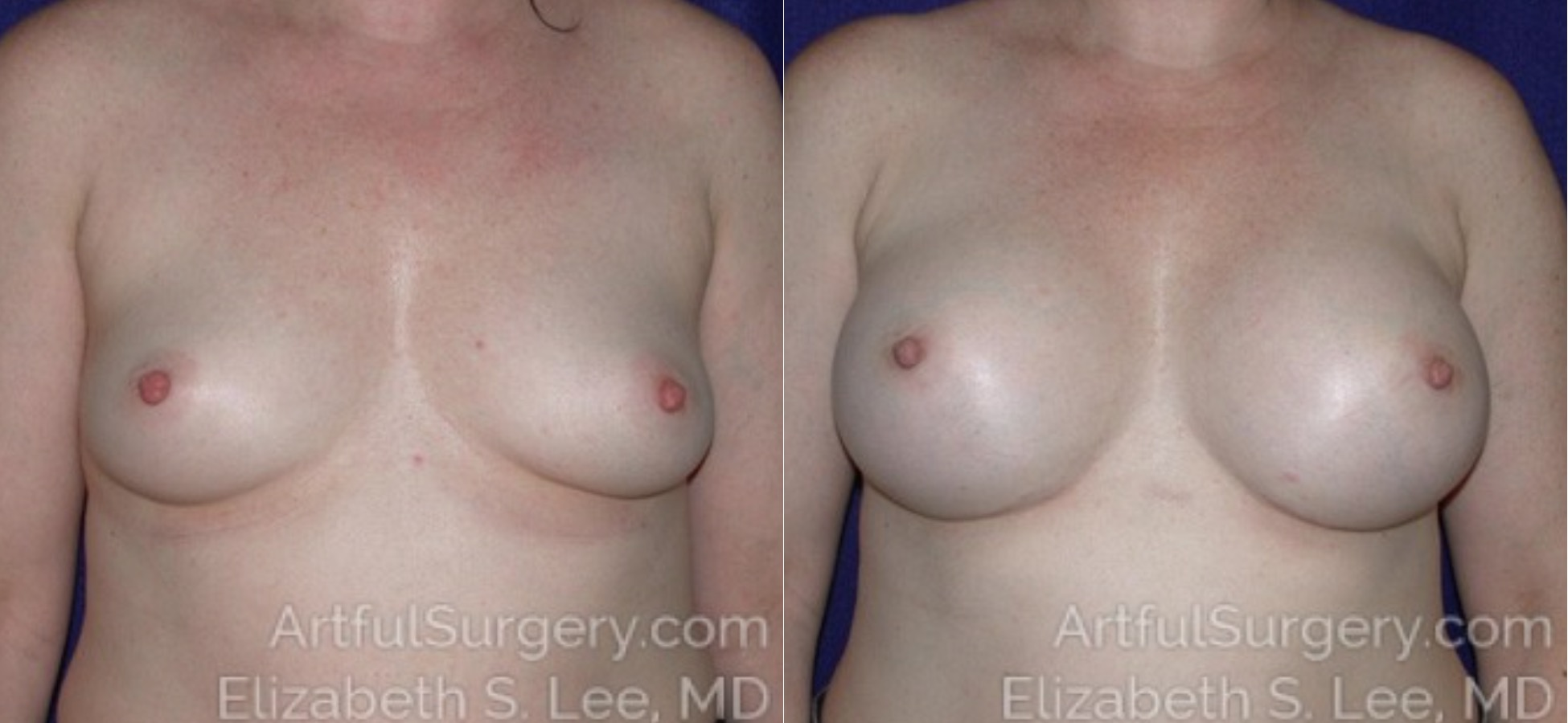 Breast Augmentation Before & After Patient #6430