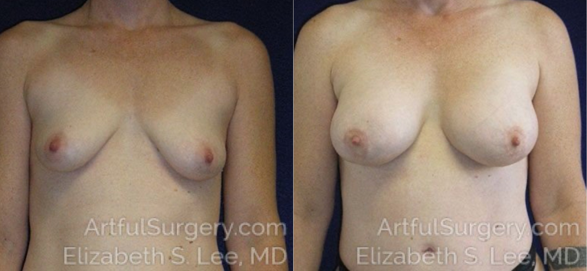Breast Augmentation Before & After Patient #2449