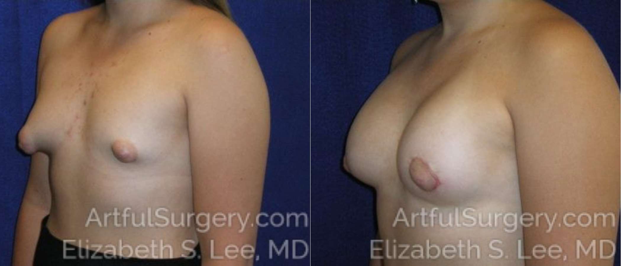 Breast Augmentation Before & After Patient #2451